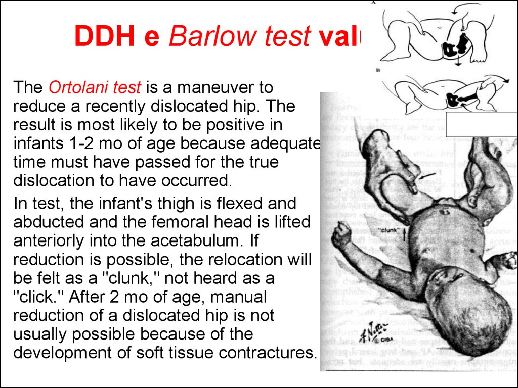 DDH e Barlow test valuation