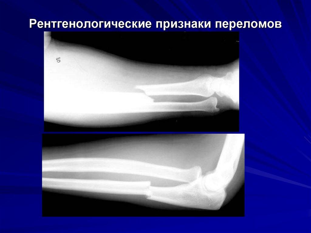 Медицина перелом костей