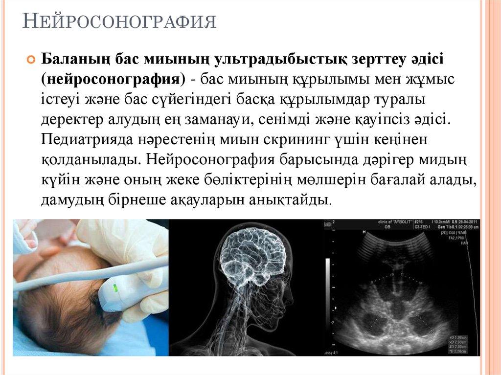 Нейросонография подольск