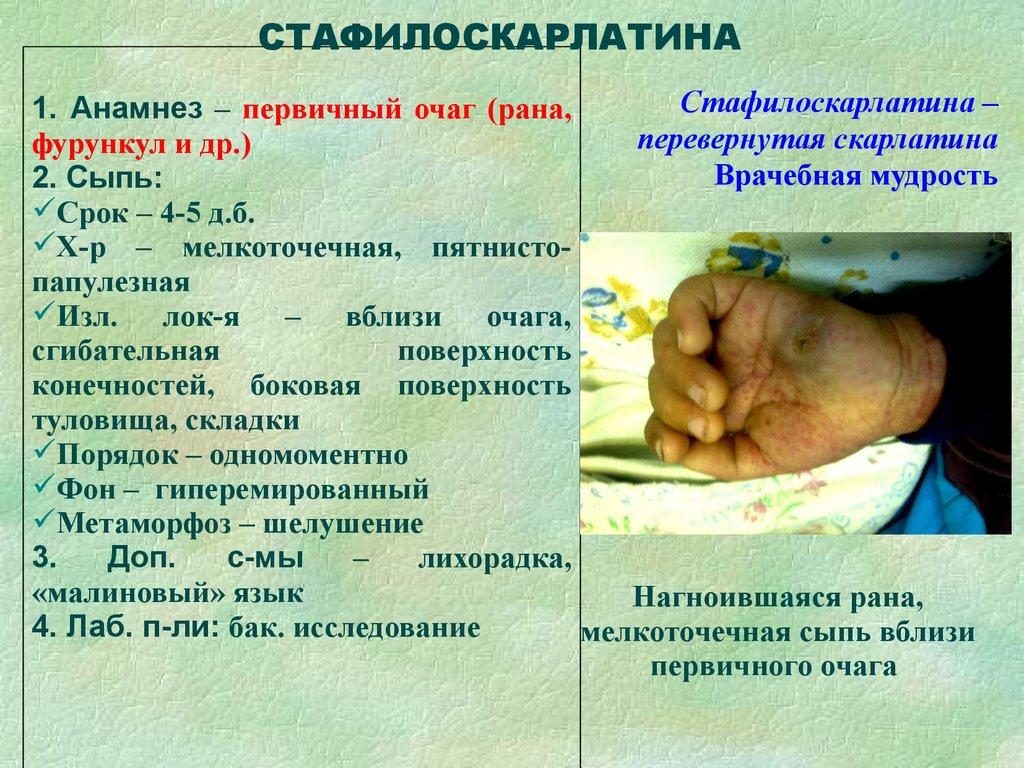 Менингококковая инфекция - симптомы, лечение 50