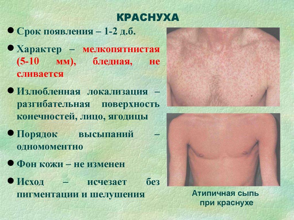 Менингококковая инфекция - симптомы, лечение 94