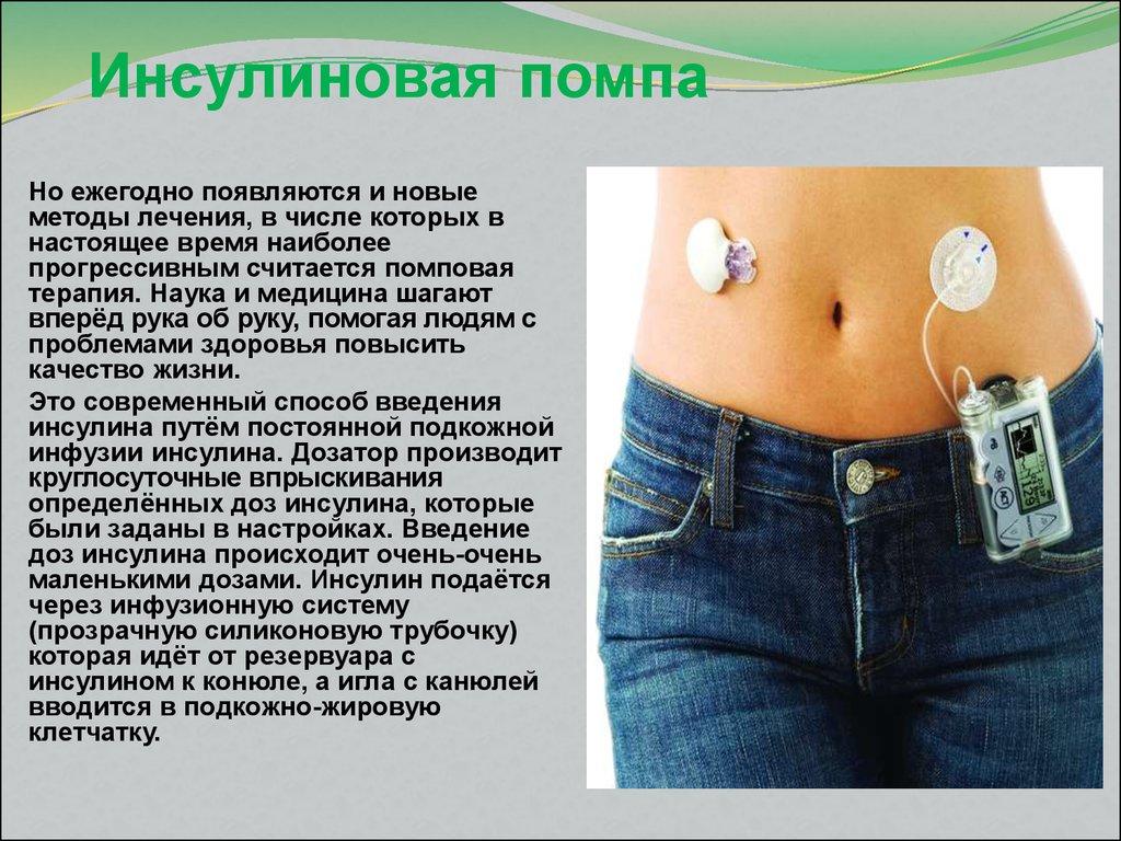 инсулиновая помпа фото