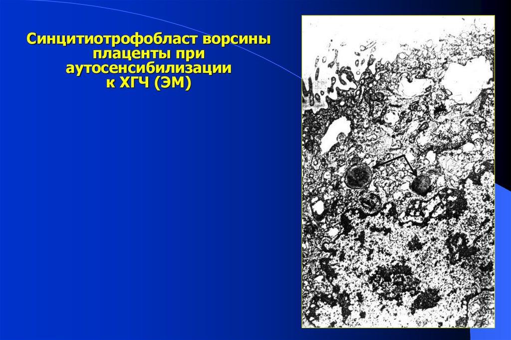 Обследование на наличие антиспермальных и антифосфолипидных антител антитела к хг