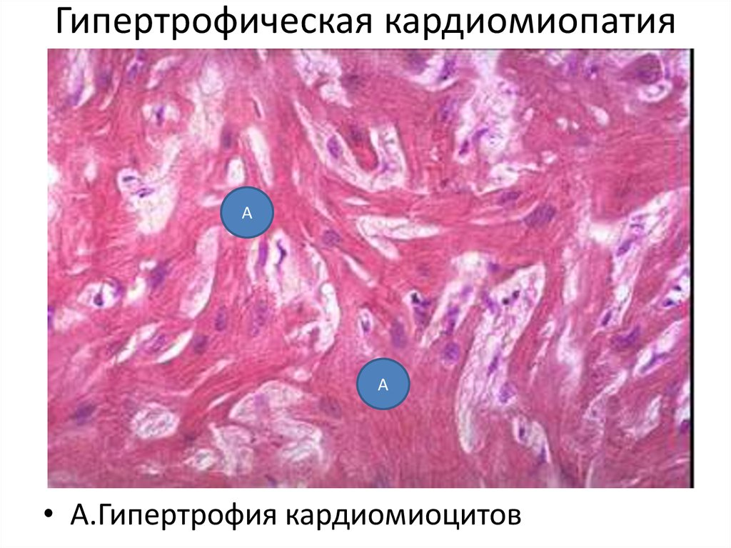 cardiomyopathy hypertrophic paper term