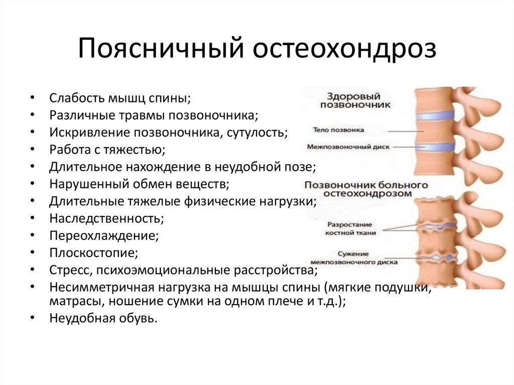 Пояснично крестцовый остеохондроз лечение в домашних
