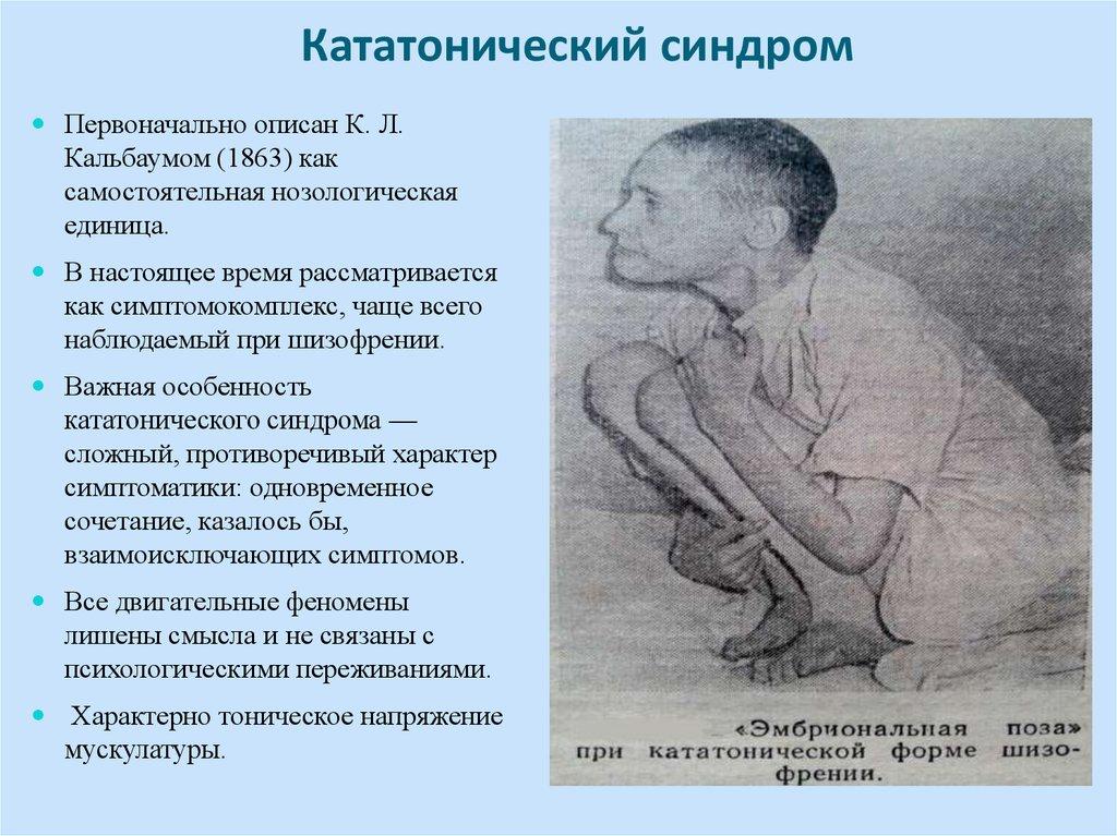 кататонический синдром фото