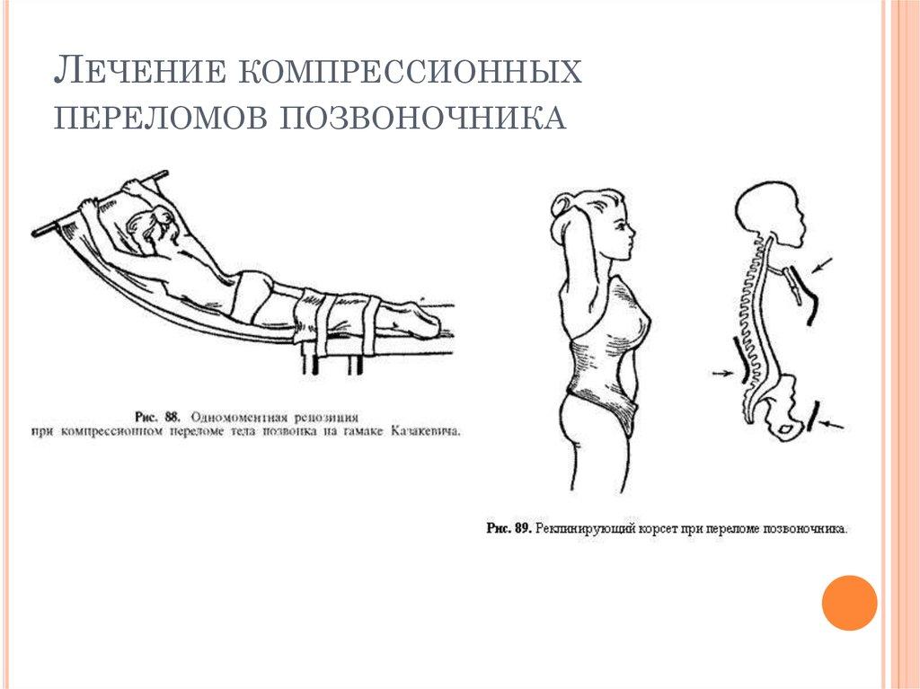 лечение синдрома оперированного позвоночника форум термобелье