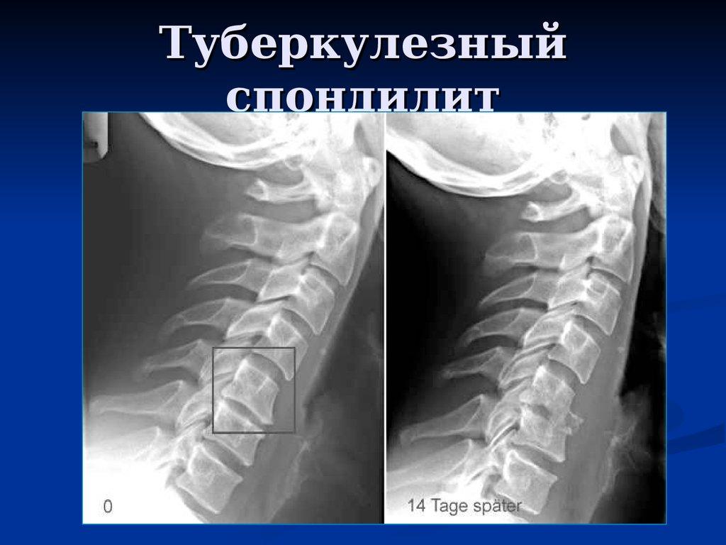 Изменения в позвоночнике при туберкулезе