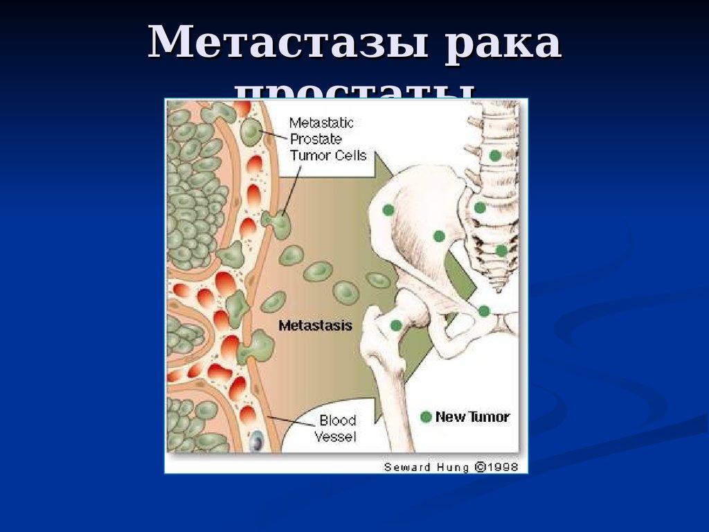 Метастатический рак предстательной железы