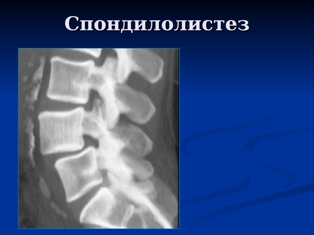 an analysis of under the knife of spondylolisthesis