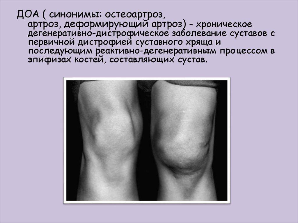 Деформирующий артроз, симптомы
