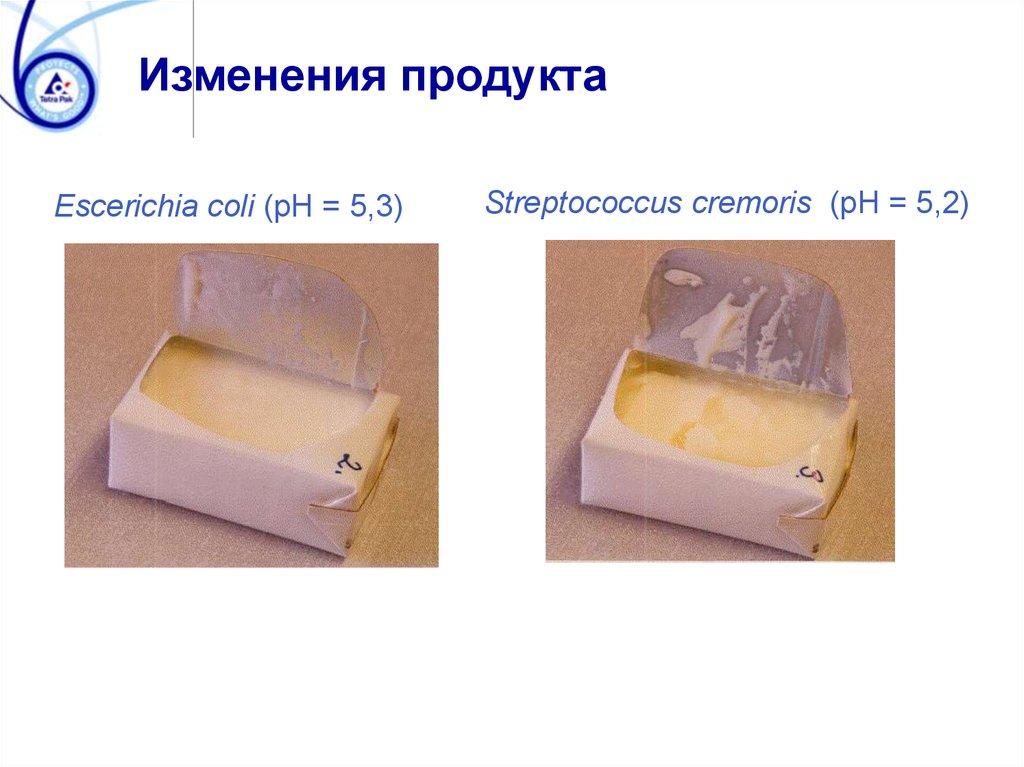 Артрит, същност и домашни средства за лечение на артрит. ~ Крем Move&Flex в България