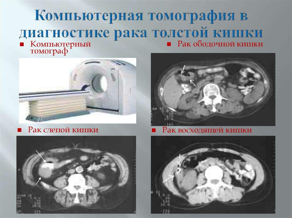 Методика позволяет обнаружить патологии размером до 1 мм.