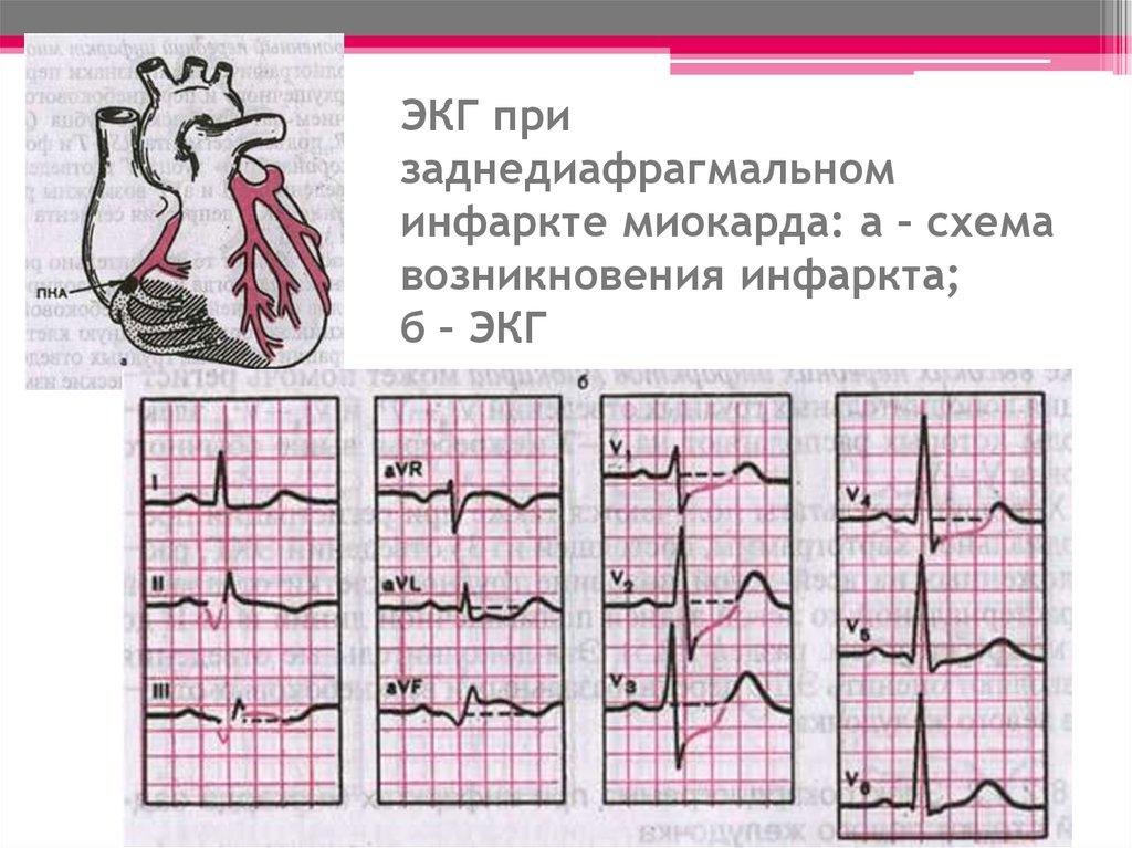сегодняшний фото кардиограммы с инфарктом из-за резко
