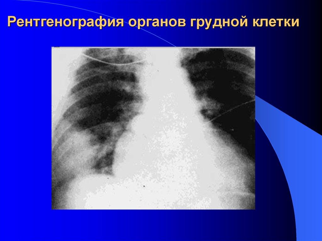 рентгенография органов грудной клетки в выходной в новосибирске обычно