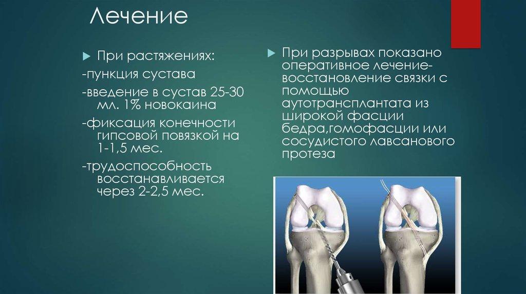 Пункция сустава это диапазон движения суставов
