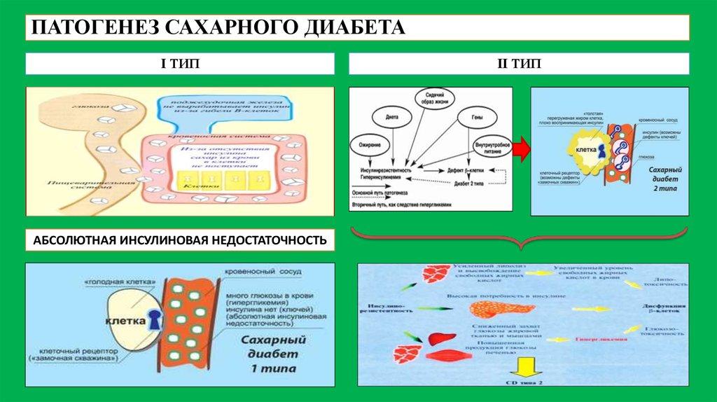Этиология патогенез сахарного диабета второго типа