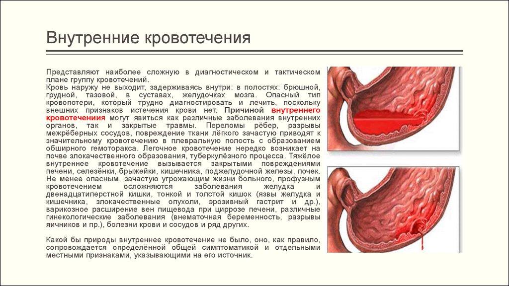 симптомы внутреннего кровотечения у женщин отзыв страховой компании