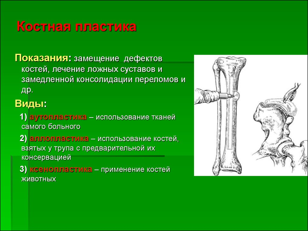 Виды резекции суставов мрт коленного сустава в гатчина цена