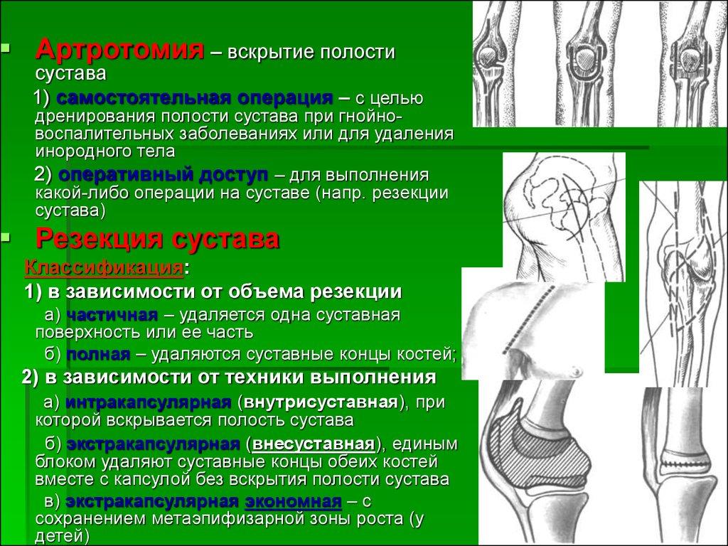 Виды резекции сустава бодибилдинг и больные суставы