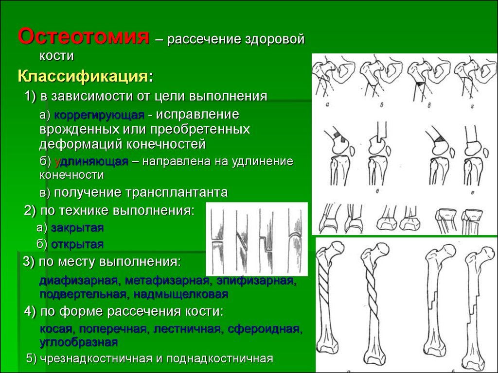 накопление жидкости в суставе, лечение