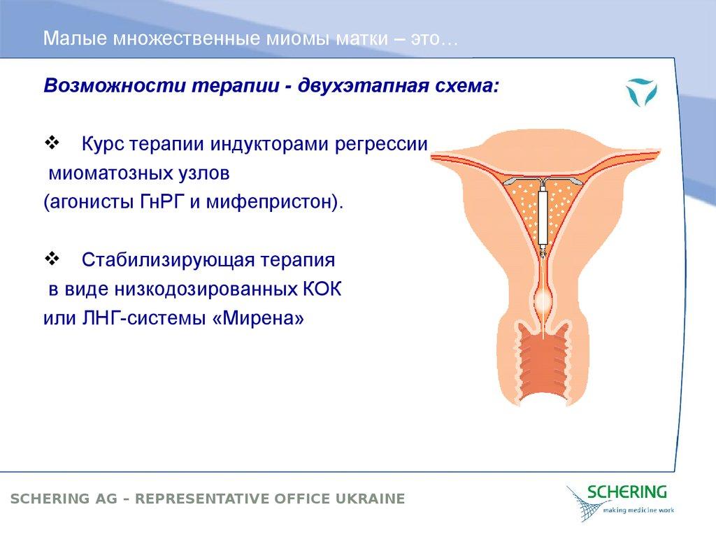 Миома тела матки небольших размеров