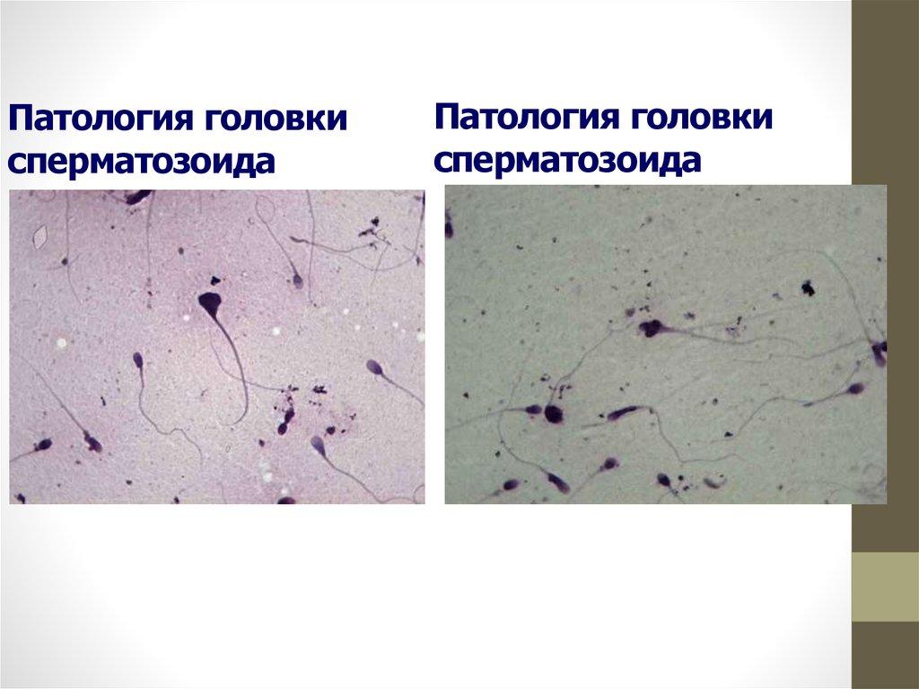 Воздействие лейкоцитов на сперматозоиды хочет