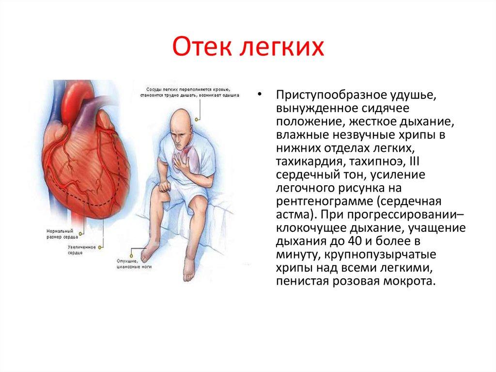 отек легких симптомы и лечение термобелье входит отдельную