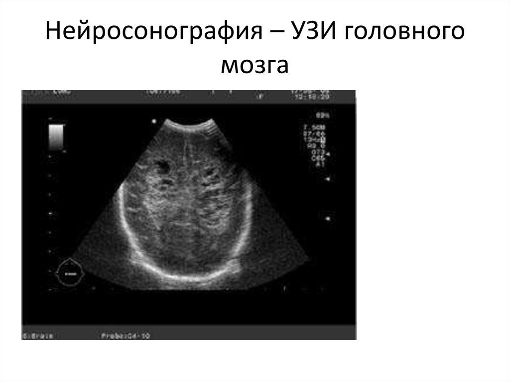 Узи головного мозга тамбов