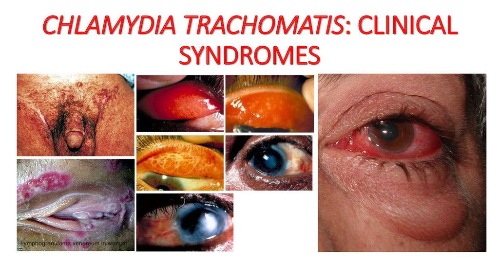 Sexually transmitted diseases chlamydia trachomatis pictures