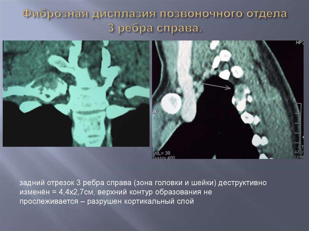 Дисплазия грудного отдела позвоночника что это такое