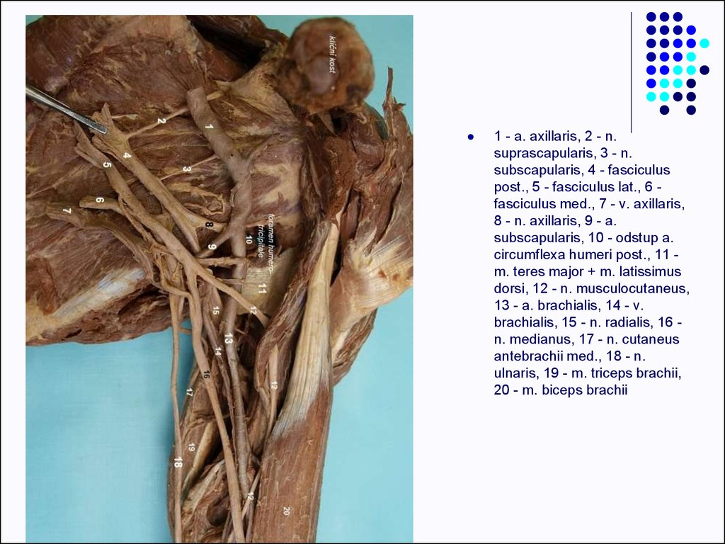 Clinical anatomy of upper limb