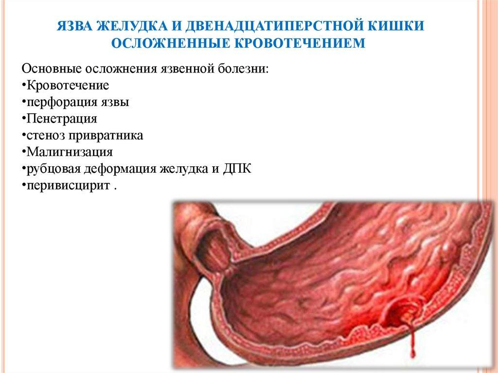 Диета Прободная Язва 12. Что можно кушать после операции прободной язвы желудка