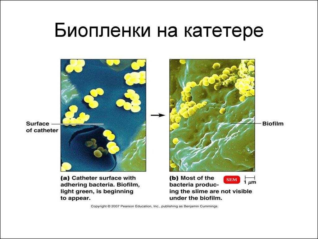 Биопленка в картинках