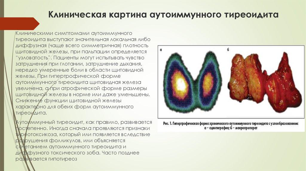 Аутоиммунный тиреоидит и беременность 1 общие сведения 2 причины 3 симптомы 3.