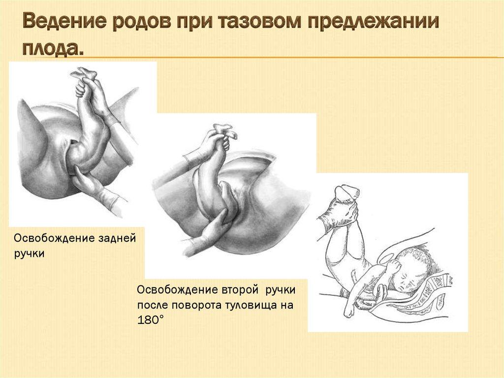 Считается что сезон рождаемости — это осень и весна, разумеется, каждая дама, которая планирует стать матерью должна знать все аспекты родовой деятельности и показания на кесарево сечение.