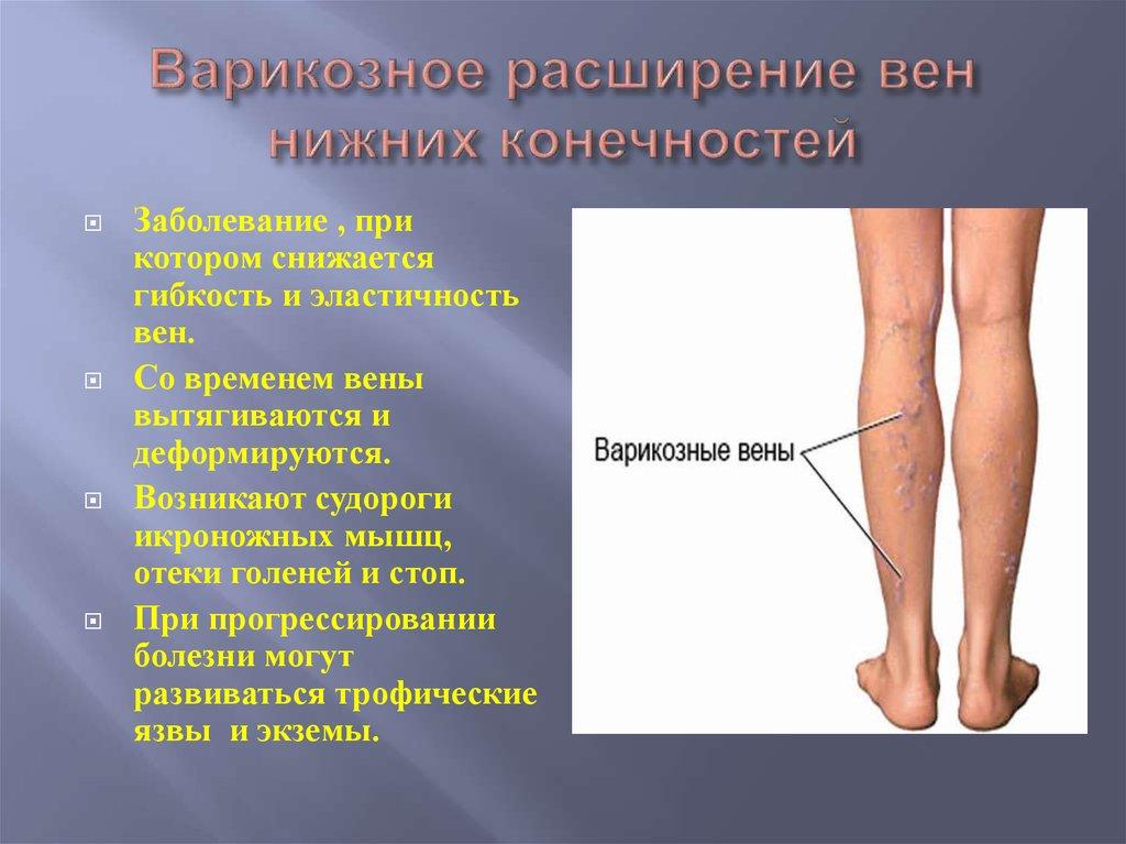 Симптомы варикозной болезни нижних конечностей