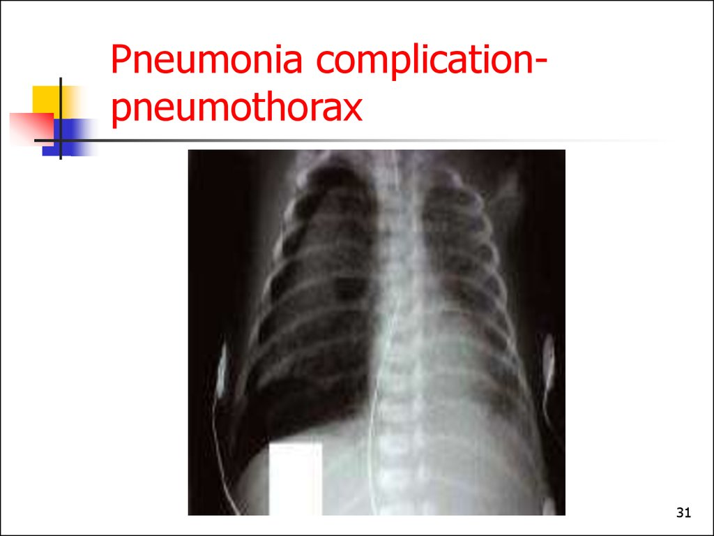 Pneumonia complication- pneumothorax