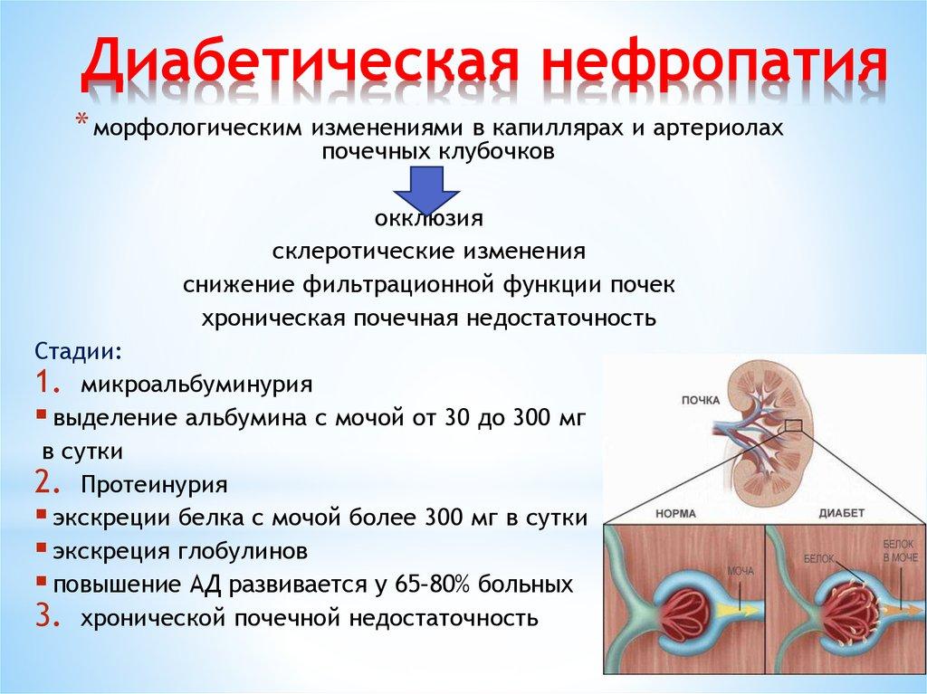 Осложнения диабета на почки