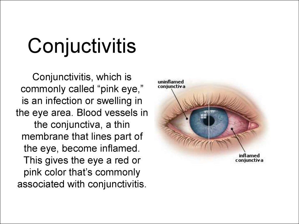 eye deseases and injuries