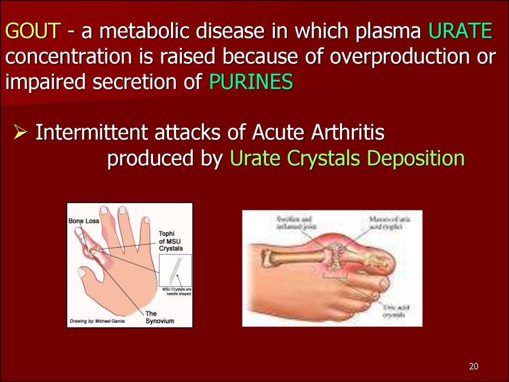 GOUT - a metabolic disease in which plasma URATE concentration is raised because of overproduction or impaired secretion of PURINES  Intermittent attacks of Acute Arthritis produced by Urate Crystals Deposition