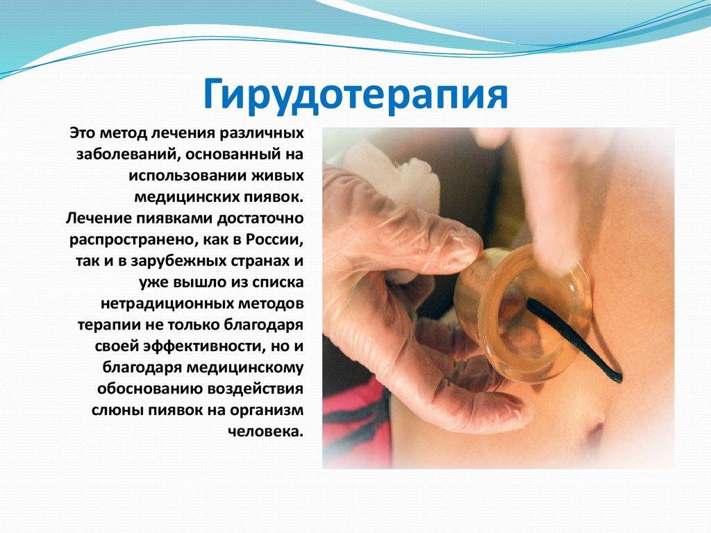 Гирудотерапия лечение медицинскими пиявками