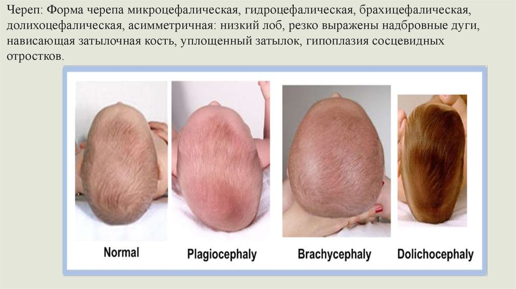 долихоцефалическая форма головы у плода фото узи