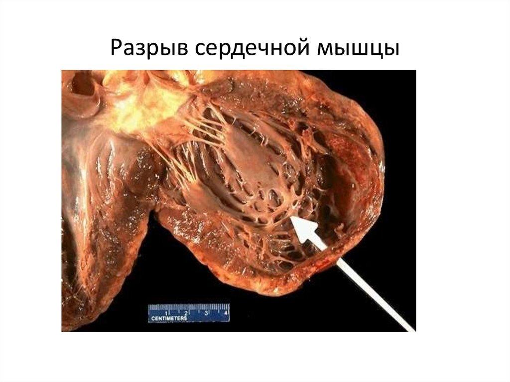 Ишемическая болезнь сердца - online presentation