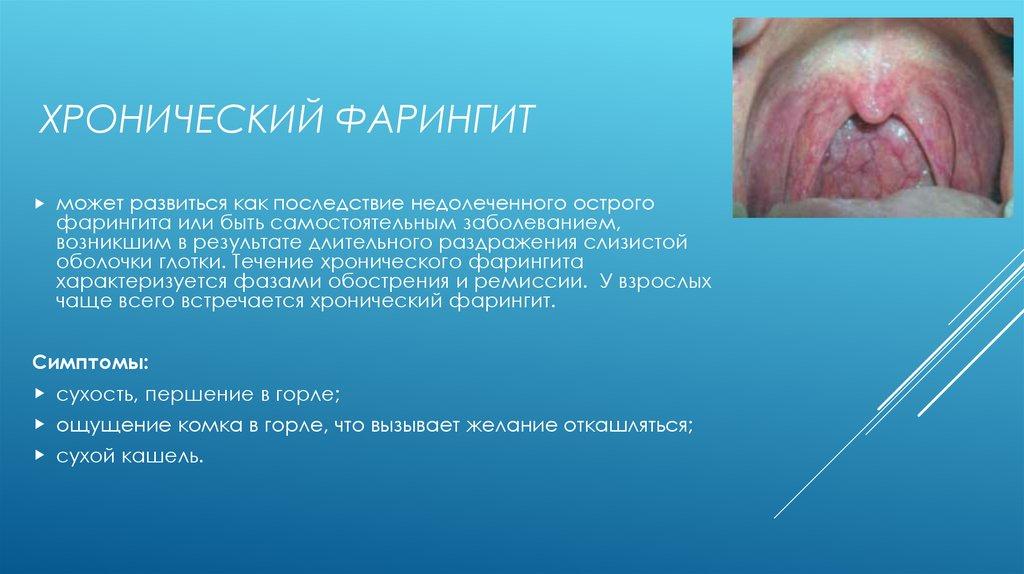 Сухой фарингит лечение