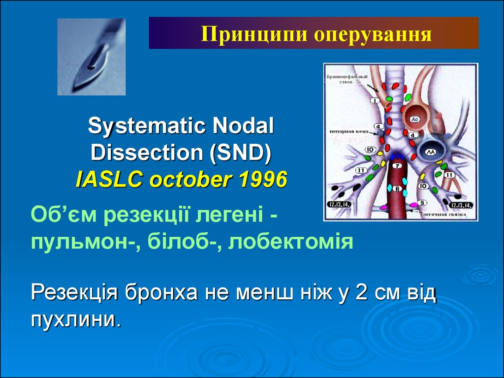 Systematic Nodal Dissection (SND) IASLC october 1996