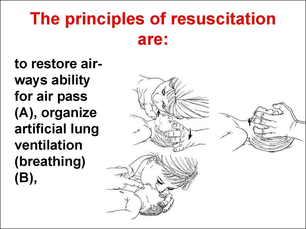 The principles of resuscitation are: