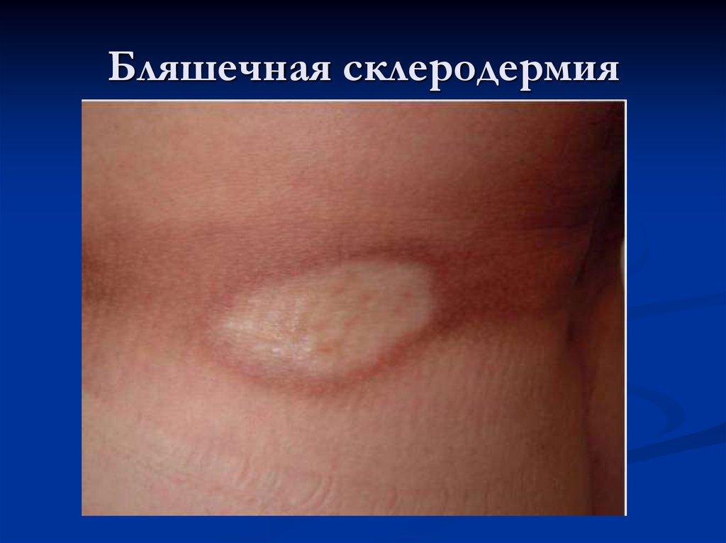 фото бляшечная склеродермия