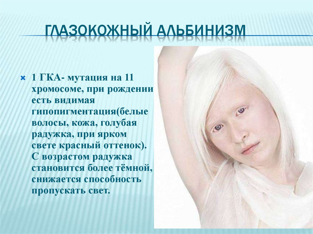 the six different genes involved in albinism Several different chromosomes are involved from oca2 through genetic testing and is caused by mutation of the matp gene oculocutaneous albinism type v.