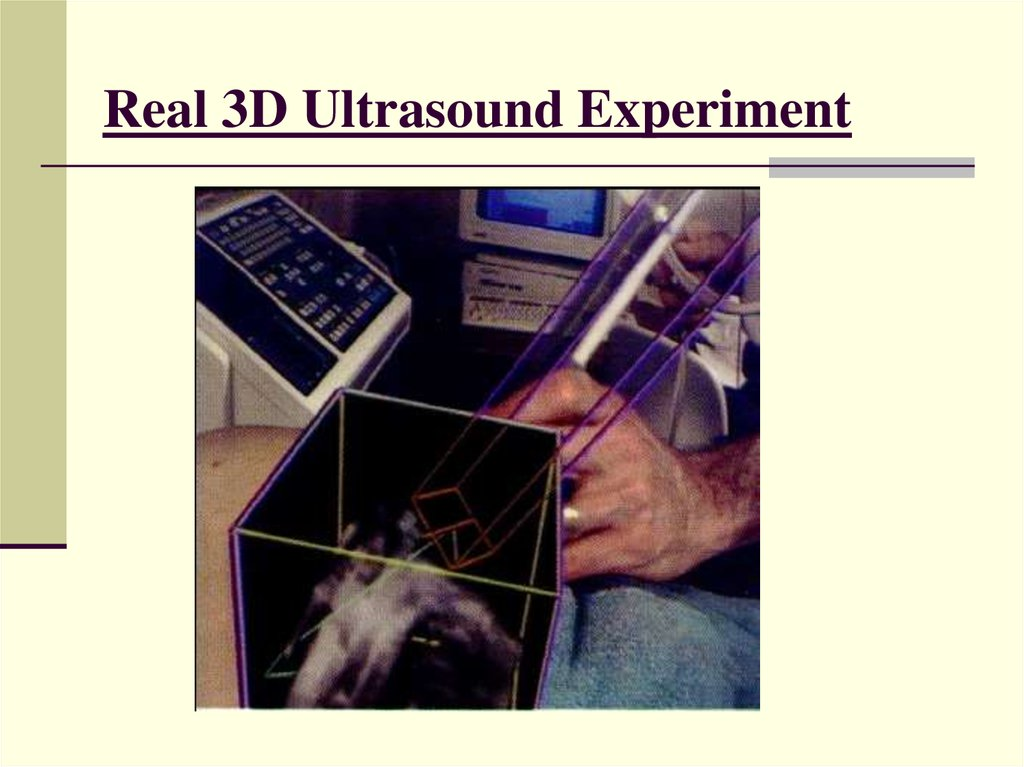 Real 3D Ultrasound Experiment
